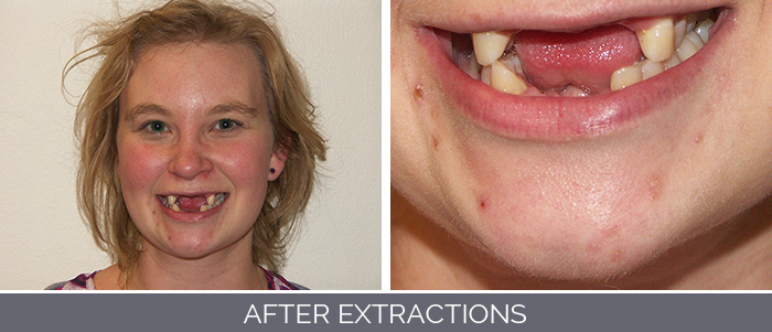 after-extractions