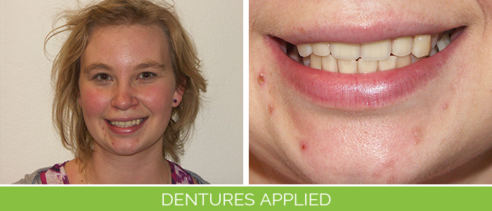 dentures-applied
