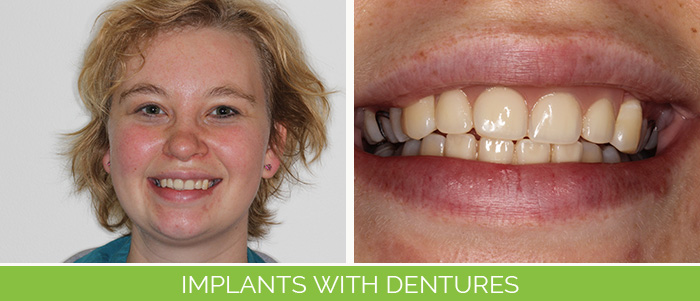 implants-with-dentures