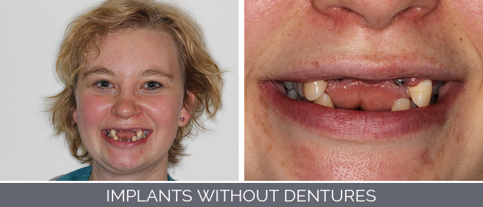 implants-without-dentures