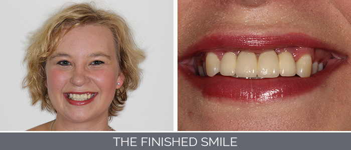 the-finished-smile