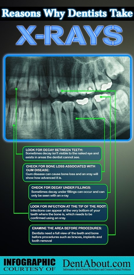Why dentists take X-Rays