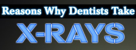 5 reasons your dentist might request a dental x-ray