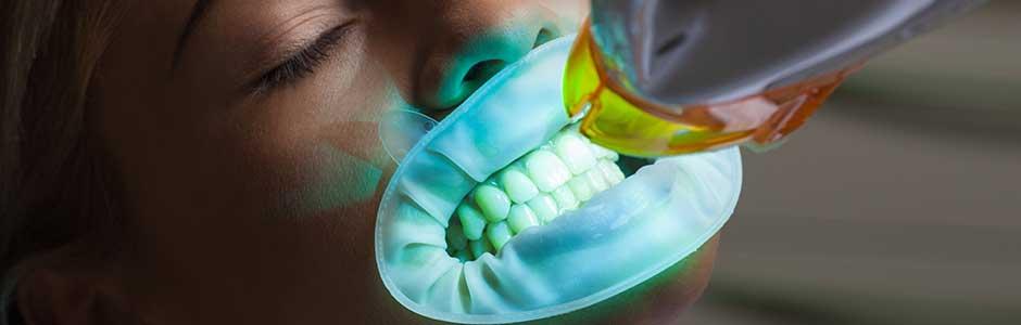 Teeth Whitening Makeovers