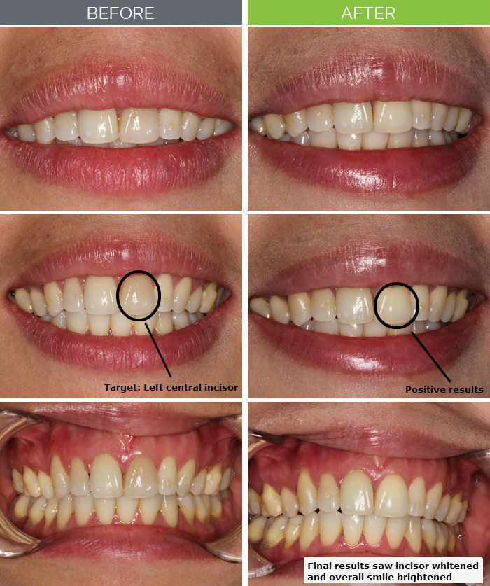 Teeth Whitening Makeovers Hyde Park Dental Care