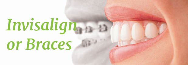 Is Invisalign Better For You Than Braces?