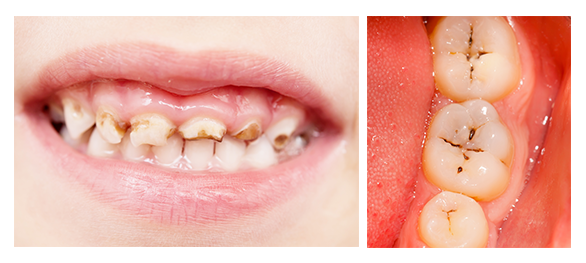 Baby bottle tooth decay! Know what to look for |Decayed Toddler Teeth
