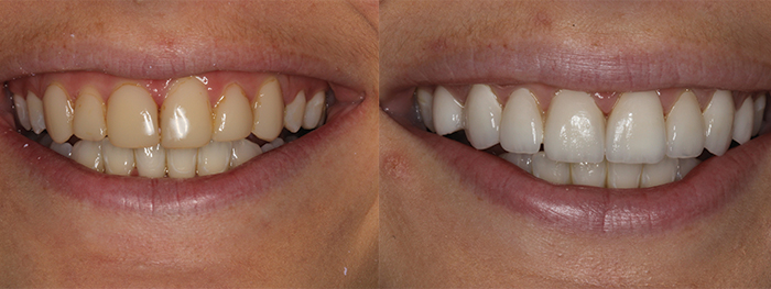 veneers close up
