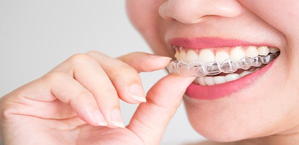 4 Tips for New Invisalign Users