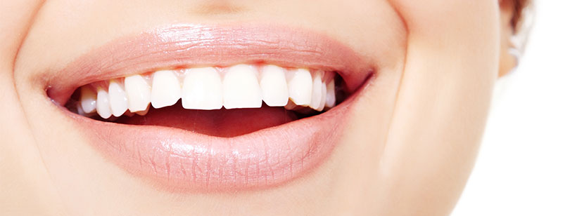 Inlays and onlays could be the answer to your tooth decay