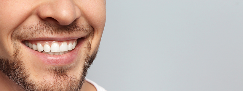How to straighten your teeth quickly