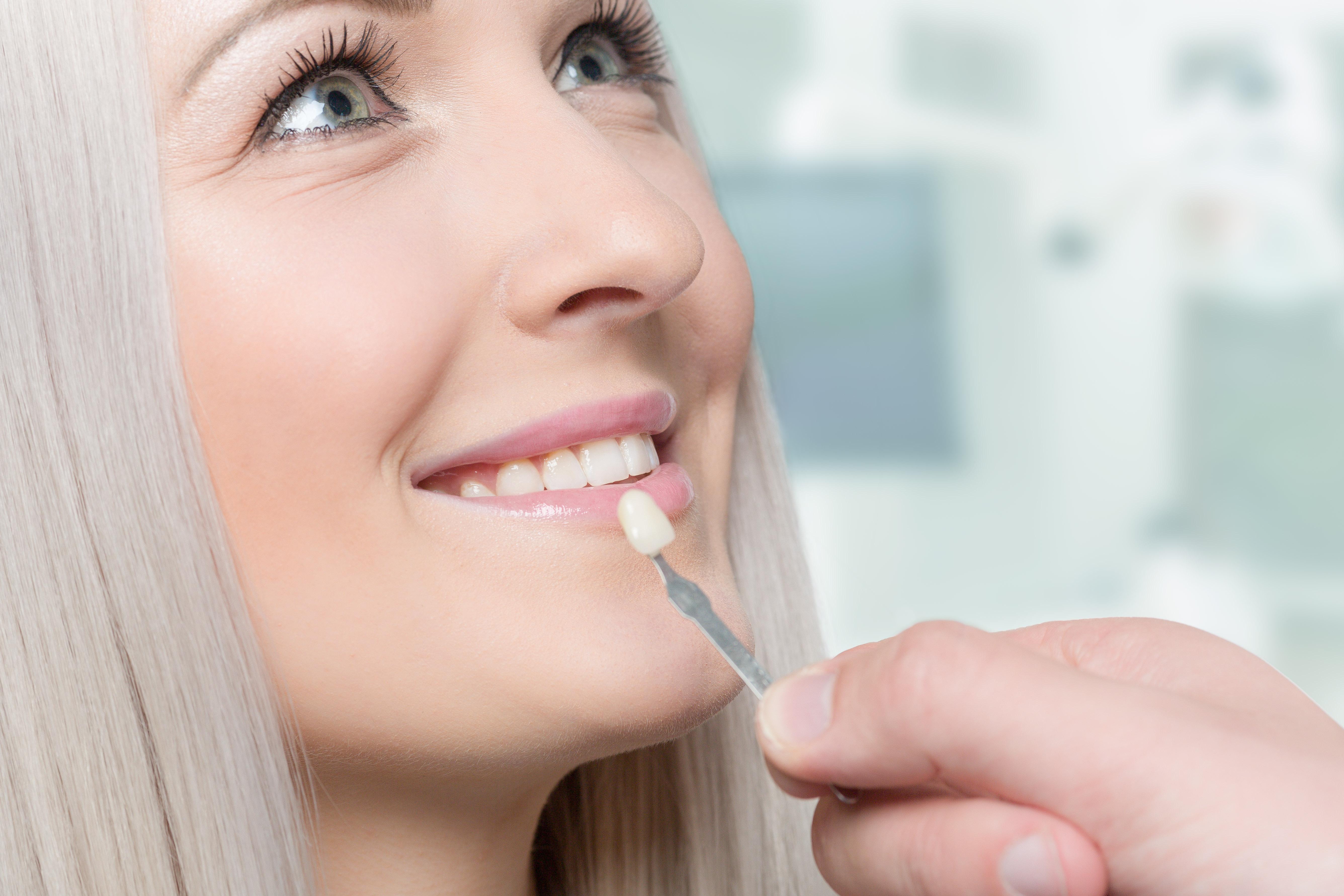Do dental veneers stain?